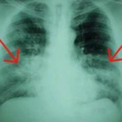 277-0-20688 fibrosi20polmonare20idiopatica